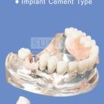 Implant Cement Type