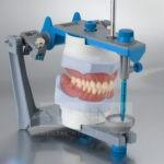 denture-try-in